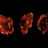 Deathspell Omega - K�n�se CD (album) cover